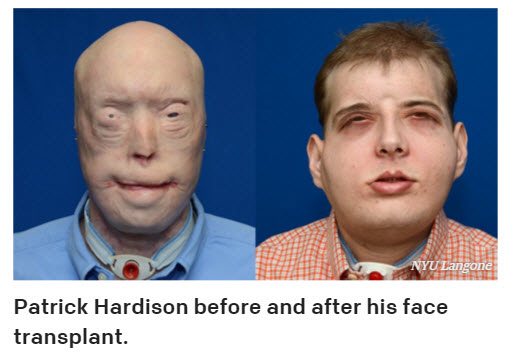 mobile home firefighter receives full face transplant